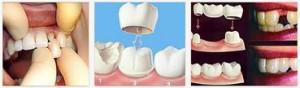 Можно ли приклеить отвалившийся зуб