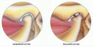 Изображение - Разрушается челюстной сустав kak-snyat-obostrenie-artroza-sustavov-300x153