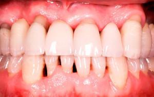 Можно ли чистить зубы пищевой содой: польза и вред