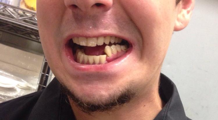 Лечение перелома челюсти в домашних условиях: правила 27