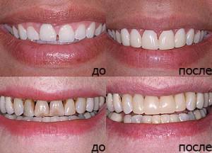 Сепарация зубов как один из вариантов исправления неправильного прикуса