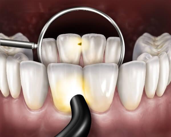Может ли кариес быть спереди зуба