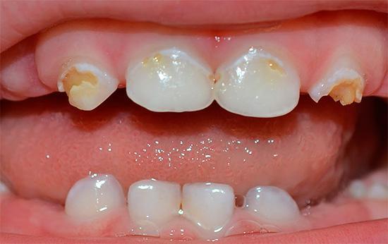 Кариес временных и постоянных зубов у детей, фото, как выглядит заболевание и как его лечить