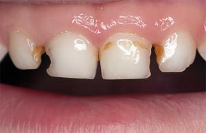 У ребенка кариес болит зуб