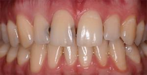 Кариес на передних зубах лечение, кариес передних зубов (фото)