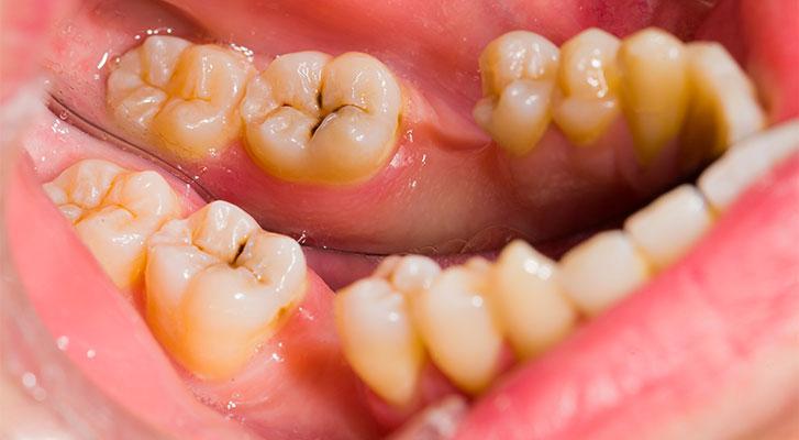 Чем промыть кариес в зубе