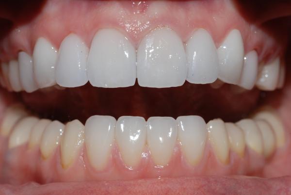 Керамические коронки на зубы – виды, фото до и после, отзывы о том, какие лучше — Startsmile