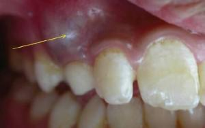 Радикулярная киста зуба верхней челюсти: причины, симптомы и лечение