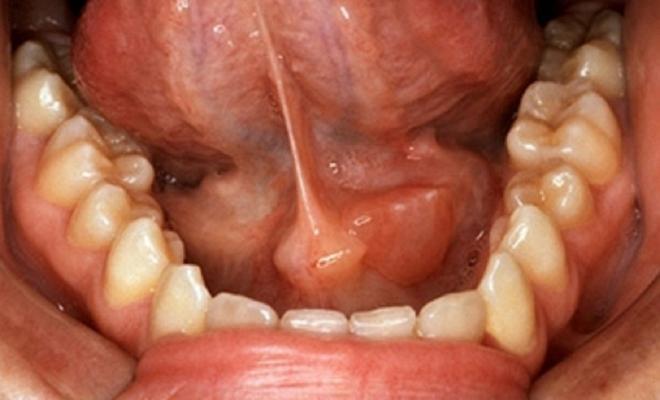 Простуда под языком