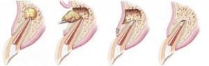 Как удаляют зуб с кистой на корне — Болезни полости рта