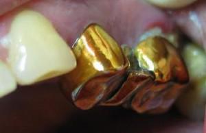 Под какой коронкой лучше сохраняется зуб