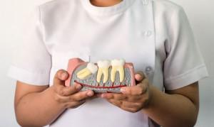 Как понять коренной зуб или молочный