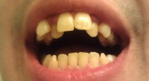 Как исправить зубы без брекетов