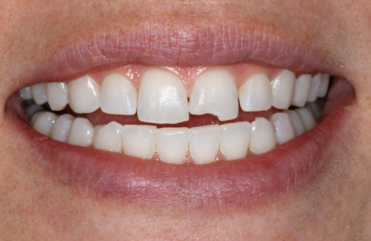 Что делать если зубы на кончиках стали прозрачными причины лечение и профилактика
