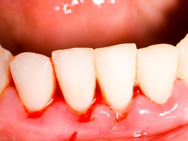 Средства от кровоточивости дёсен, сопровождаемой неприятным запахом. Что делать когда появляется неприятный запах изо рта и кровоточат дёсны Гингивит запах изо рта