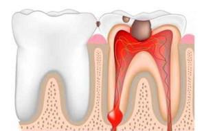 Болит зуб как лечить в домашних условиях