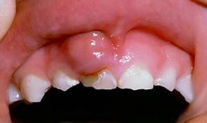 Периодонтит молочного зуба: формы, диагностика, причины, лечение