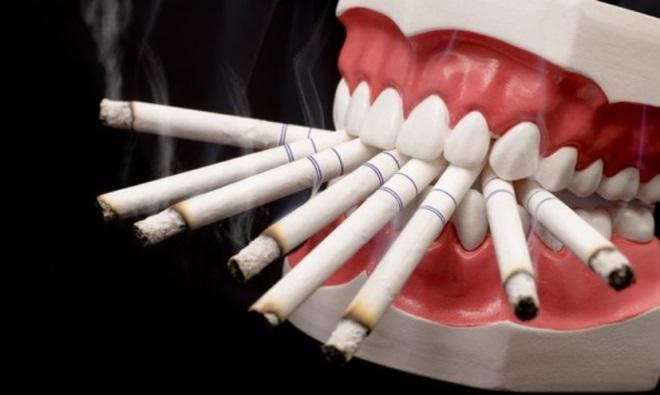 Как лечить лейкоплакию полости рта