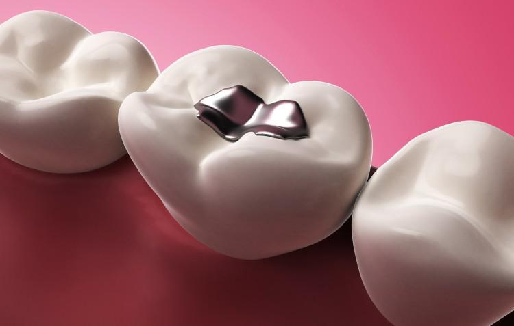 Сколько нельзя есть после пломбирования зуба временной пломбой