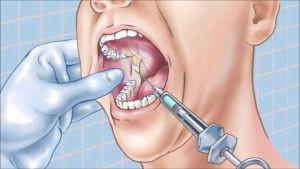 Понятие и виды проводниковой анестезии в стоматологии особенности применения наркоза нижней и верхней челюсти