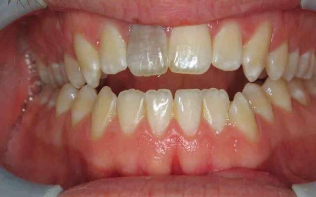 Может ли болеть зуб без нерва и почему болит мертвый зуб: причины и решение