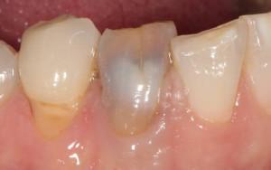 Может ли болеть мертвый зуб из за кариеса