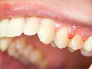 Гнойный мешок на корне зуба