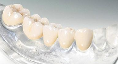 Как делают металлокерамические коронки на передние зубы