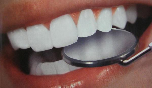 Покрыть зубы эмалью для отбеливания зубов
