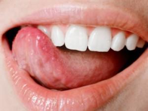 Жжение во рту чем лечить