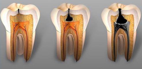 Как убить корень зуба