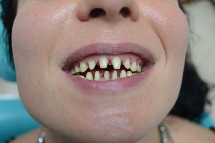 Как обтачивают зубы под металлокерамику фото — Болезни полости рта