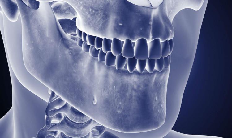 Хронический одонтогенный остеомиелит нижней челюсти