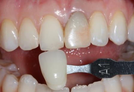 Отбеливание мертвого потемневшего депульпированного зуба