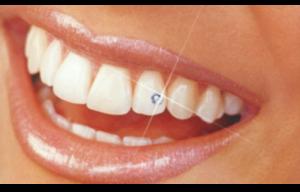 Отбеливание зубов если коронка