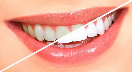 Чем снять боль после отбеливания зубов