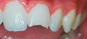 Выбитые зубы во сне. К чему снятся зубы? Толкование снов