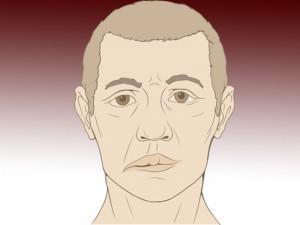 Герпес лицевого нерва симптомы