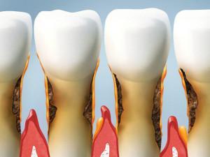 Веерообразное расхождение зубов