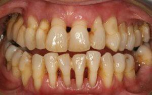 Парадонтоз спасти зубы лекарства помогают народные средства