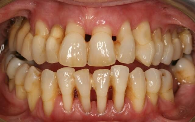 parodontoz-11