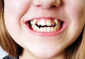Брекеты чтобы выпрямить один зуб