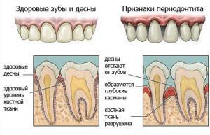 Серозный периодонтит признаки развитие и лечение заболевания