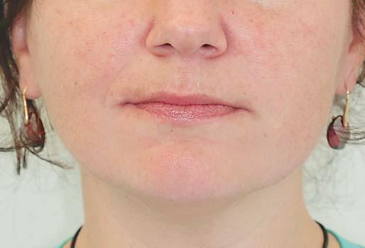 Тризм челюсти жевательной мускулатуры