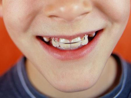 plastinka-dlya-zubov-podkhodit-dlya-ispravleniya-prikusa-v-detskom-vozraste
