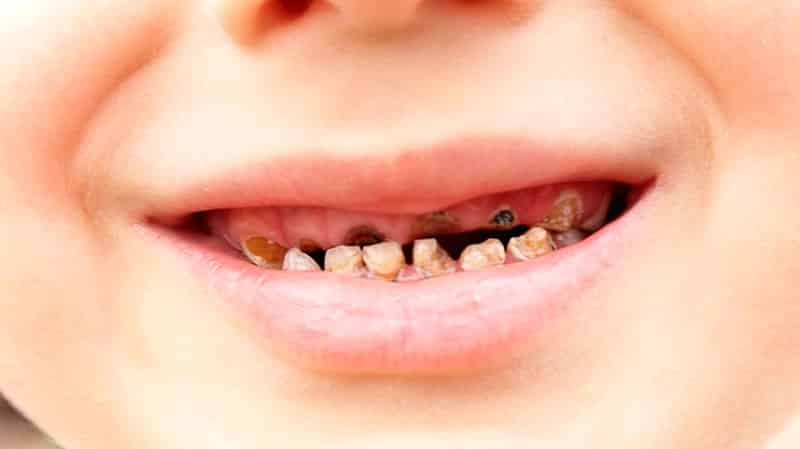 Плохие молочные зубы у ребенка фото