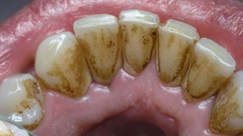 Черные зубы: почему происходит у взрослых, что делать, если ...