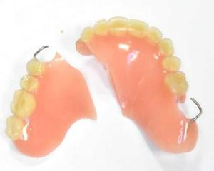 Чем приклеить зуб в домашних условиях