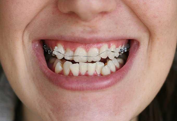 После снятия брекетов зубы разъехались и искривились