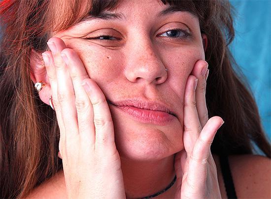 После удаления зуба мудрости не проходит онемение губы и подбородка. Почему возникает парестезия после удаления зуба мудрости, и как побороть онемение. Потеря чувствительности — не приговор